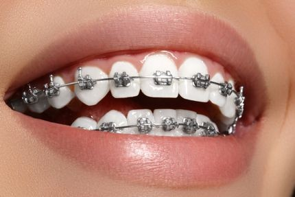 Dental Braces for Adults