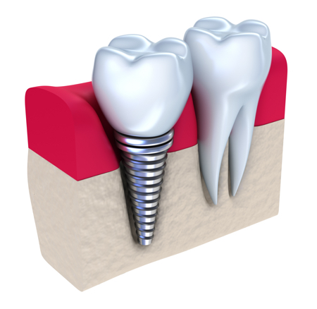 Dental Implants Milton