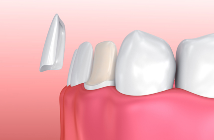 Porcelain Veneers installation