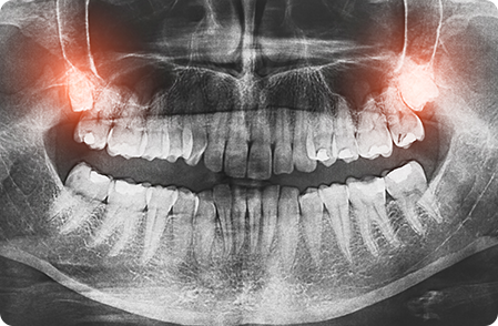Wisdome Teeth X-Ray - Removal of Wisdome Teeth